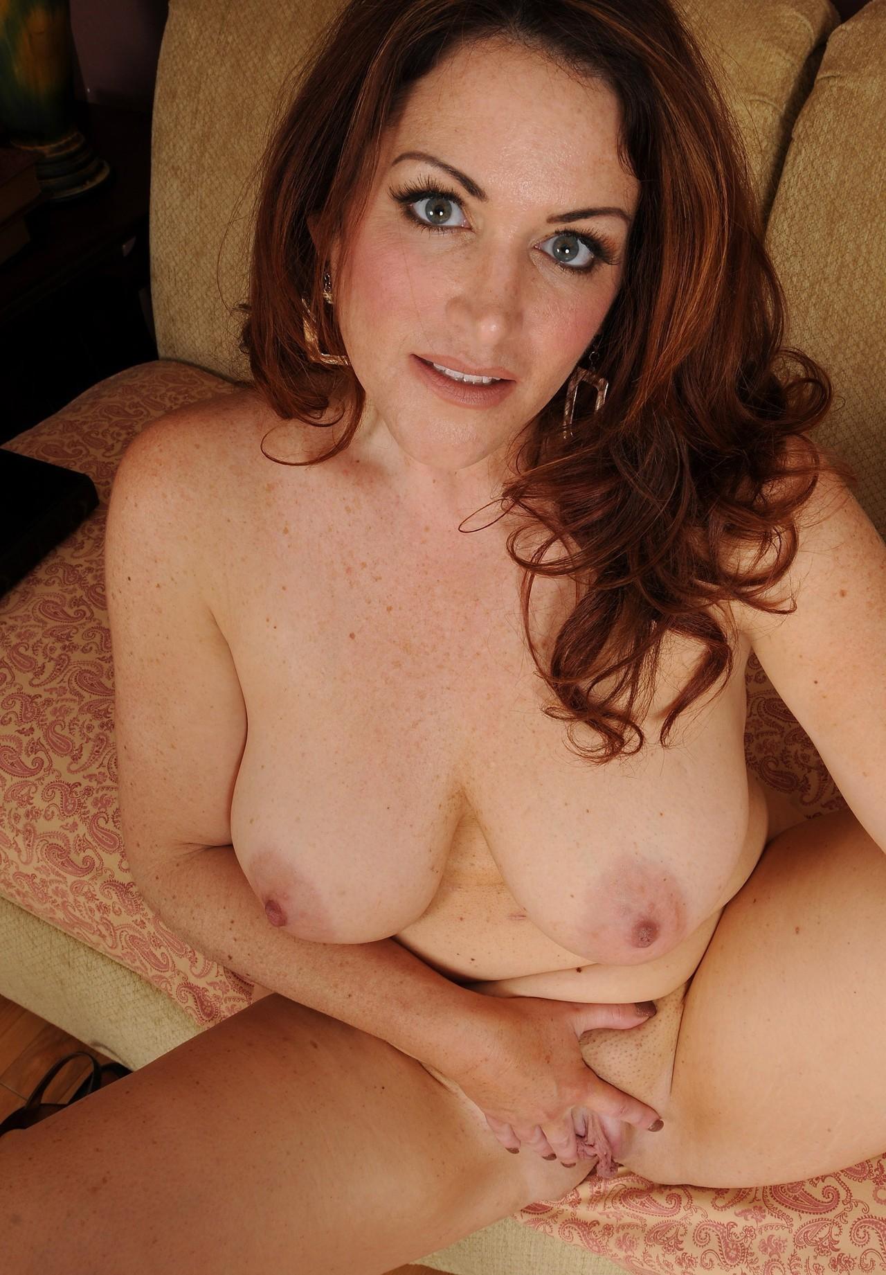 Mature freckles